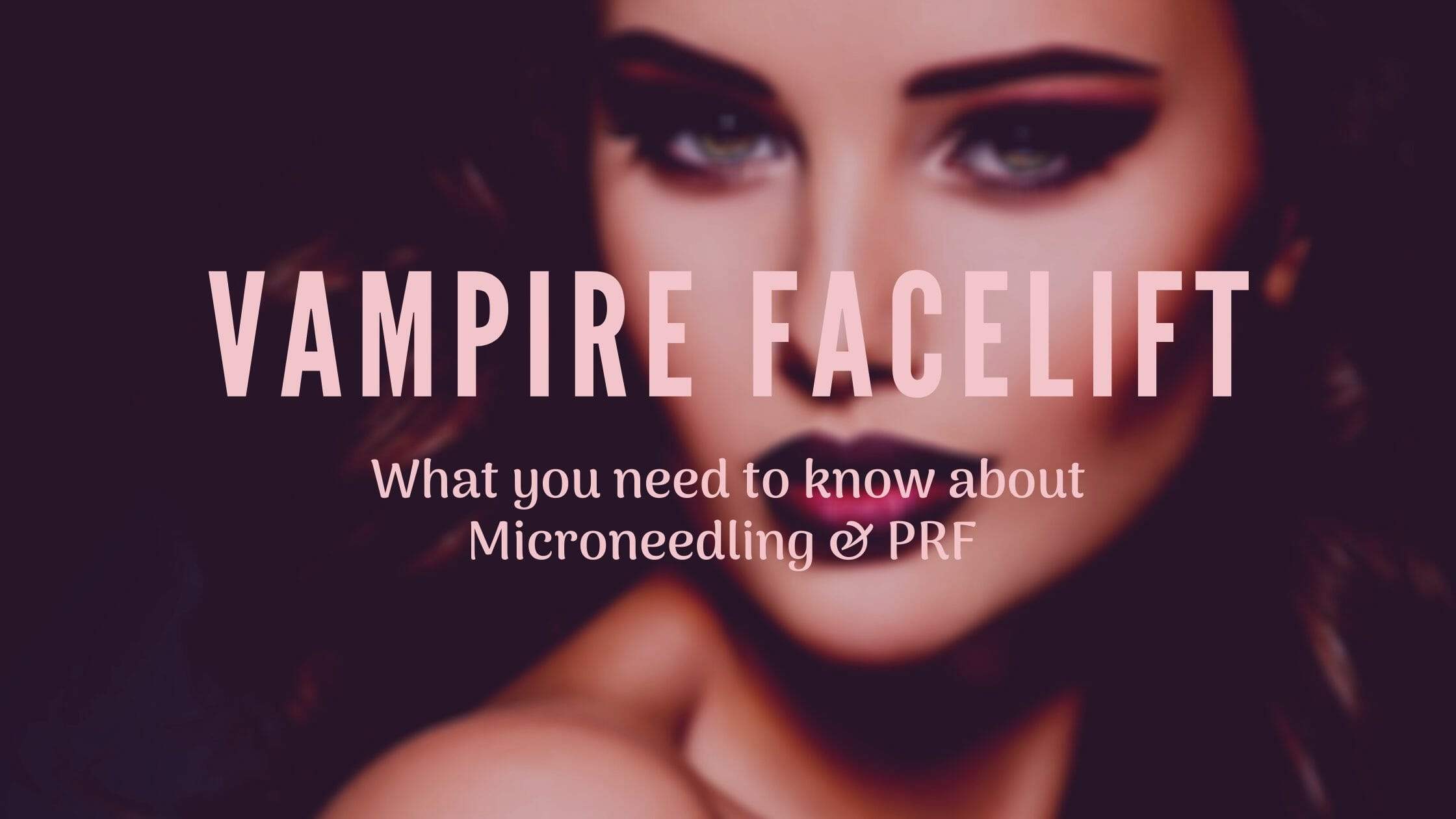 Vampire Facelift - What you need to know